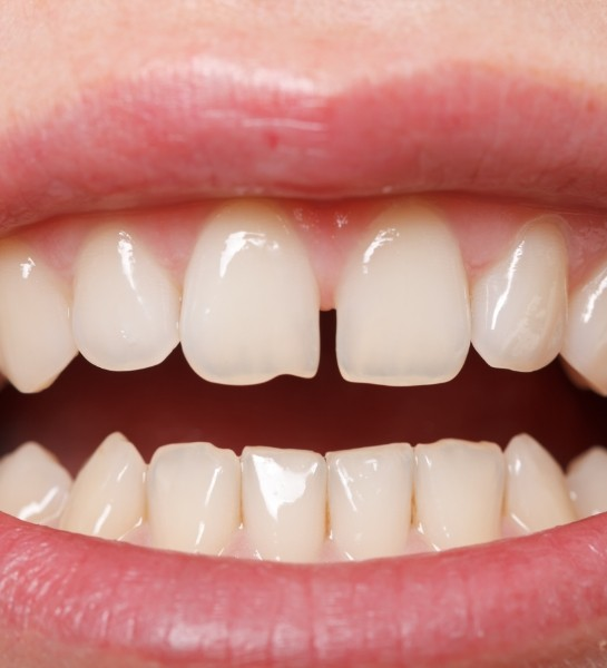 person with gaps between their teeth